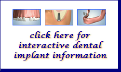 Clickable graphic to launch interactive Dental Implant information