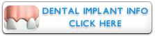 Dental Implant Info